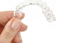 אינויזליין – יתרונות וחסרונות של השיטה ליישור שיניים שקוף