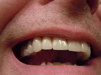 מתי עושים כתר בשיניים?